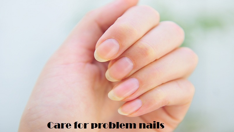 Care for problem nails