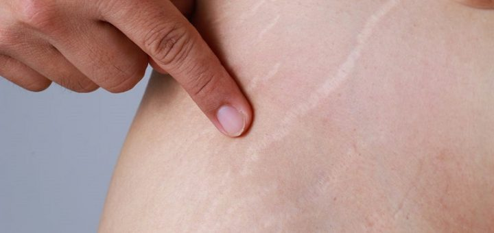 How to remove white stretch marks